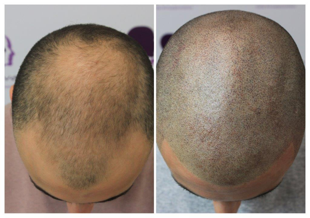 Matt-1 Gallery -The Scalp  & Micro-pigmentation Experts Swindon