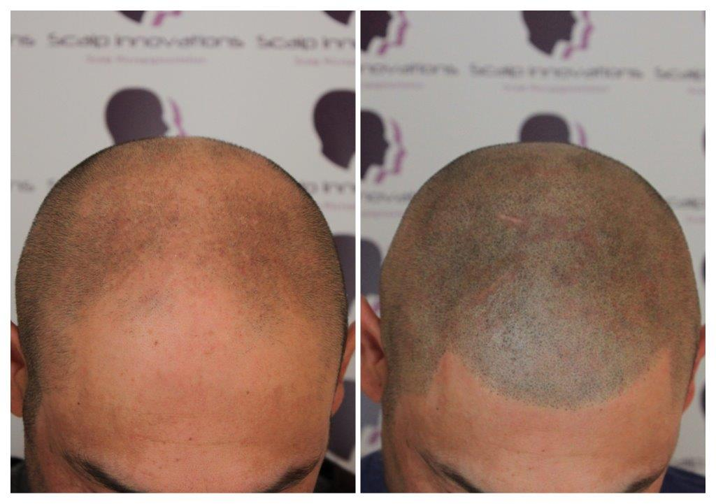 Neil-smp-3 Gallery -The Scalp  & Micro-pigmentation Experts Swindon