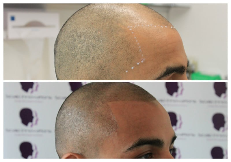 New-hair-line-feb2019 Gallery -The Scalp  & Micro-pigmentation Experts Swindon