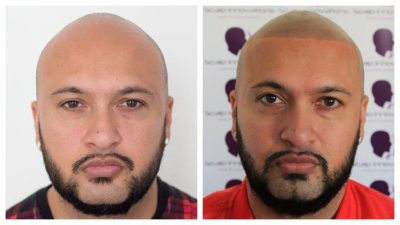 Omar-19-400x225 Gallery -The Scalp  & Micro-pigmentation Experts Swindon