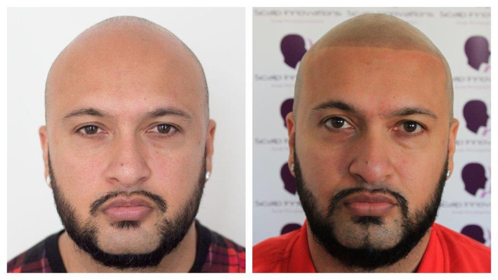 Omar-19 Gallery -The Scalp  & Micro-pigmentation Experts Swindon