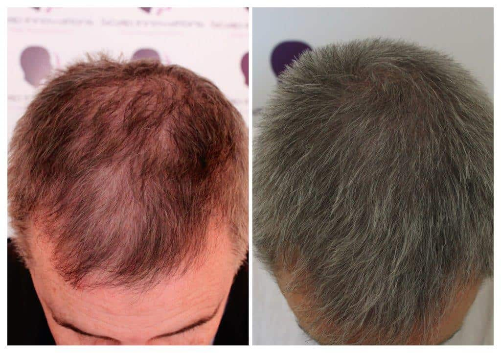 Rich-18_collage Gallery -The Scalp  & Micro-pigmentation Experts Swindon