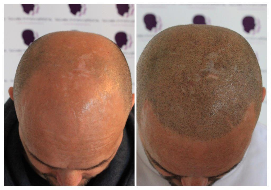 Rob-N-2 Gallery -The Scalp  & Micro-pigmentation Experts Swindon