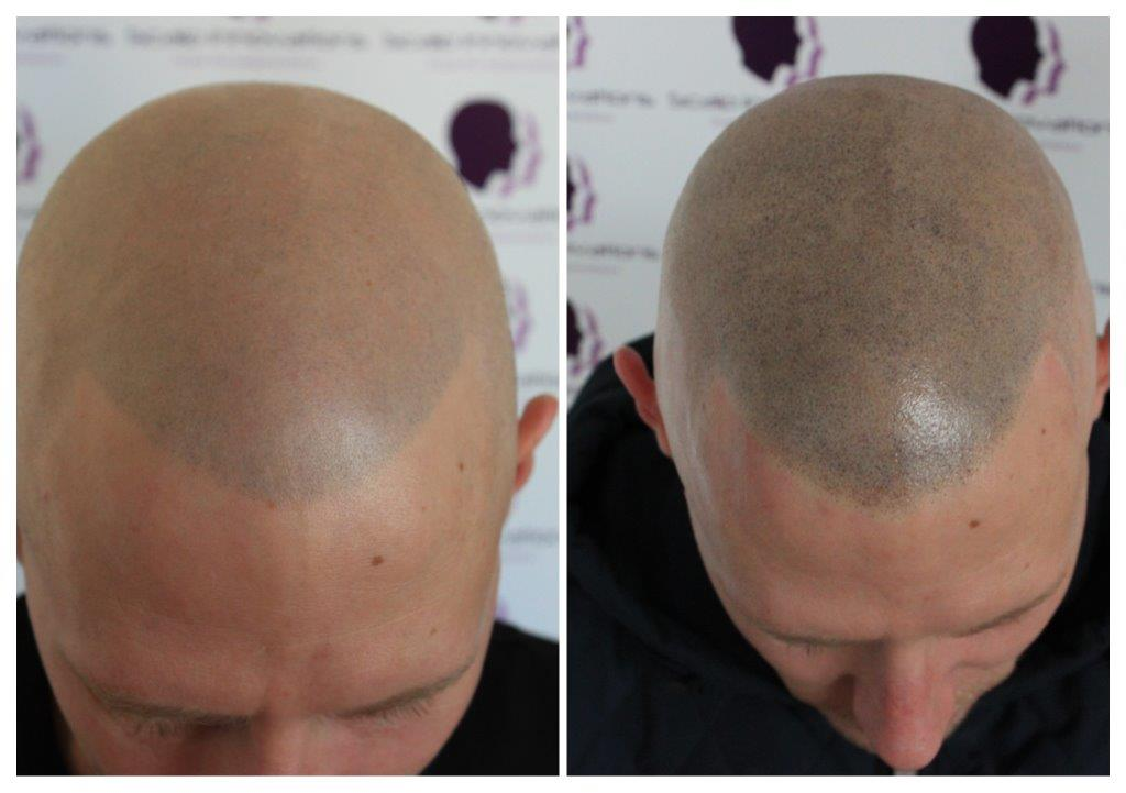 Rob-Session-2-1 Gallery -The Scalp  & Micro-pigmentation Experts Swindon