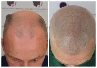 SMP-4-400x282 Gallery -The Scalp  & Micro-pigmentation Experts Swindon