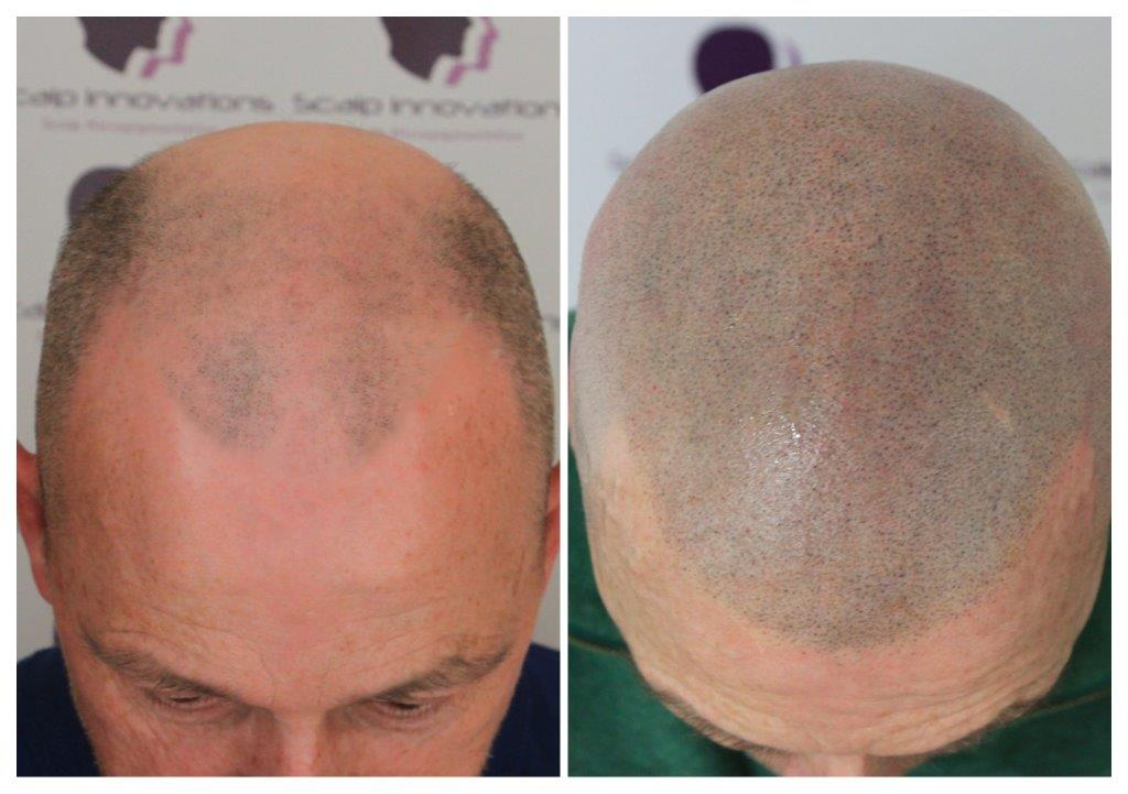 SMP-4 Treatments -The Scalp  & Micro-pigmentation Experts Swindon