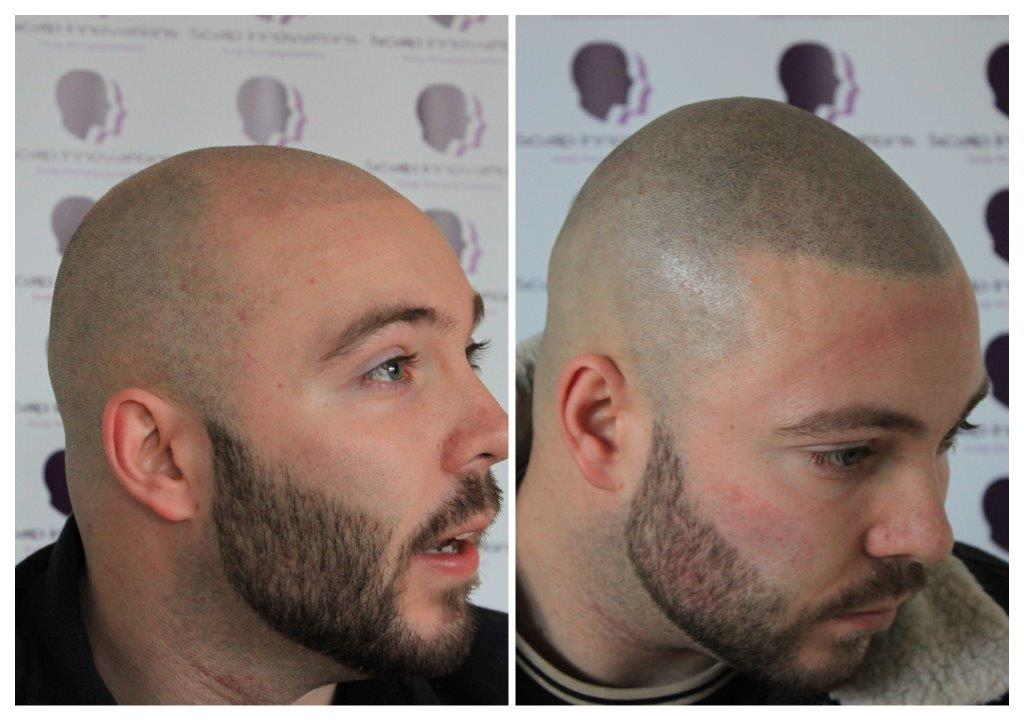 SMP-6 Gallery -The Scalp  & Micro-pigmentation Experts Swindon