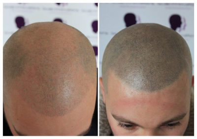 SMP-8-400x282 Gallery -The Scalp  & Micro-pigmentation Experts Swindon