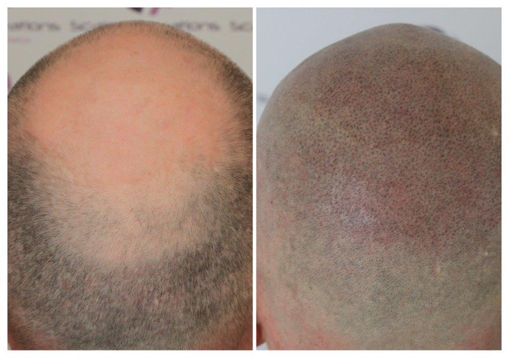 SMP Gallery -The Scalp  & Micro-pigmentation Experts Swindon
