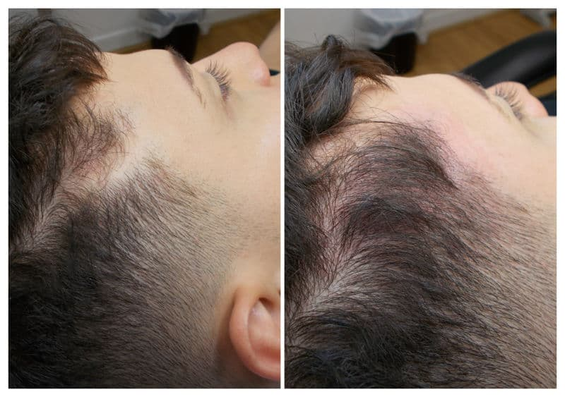 Scar-Camouflage-march-2019 Gallery -The Scalp  & Micro-pigmentation Experts Swindon