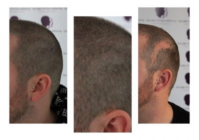 Scar-camouflage-3-sessions-400x282 Gallery -The Scalp  & Micro-pigmentation Experts Swindon
