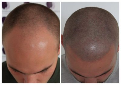 Shaved-12-400x282 Gallery -The Scalp  & Micro-pigmentation Experts Swindon