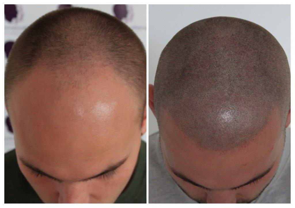Shaved-12 Home -The Scalp  & Micro-pigmentation Experts Swindon