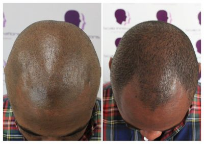 Shaved-19-400x282 Gallery -The Scalp  & Micro-pigmentation Experts Swindon