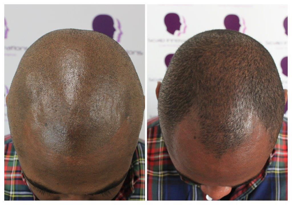 Shaved-19 Gallery -The Scalp  & Micro-pigmentation Experts Swindon