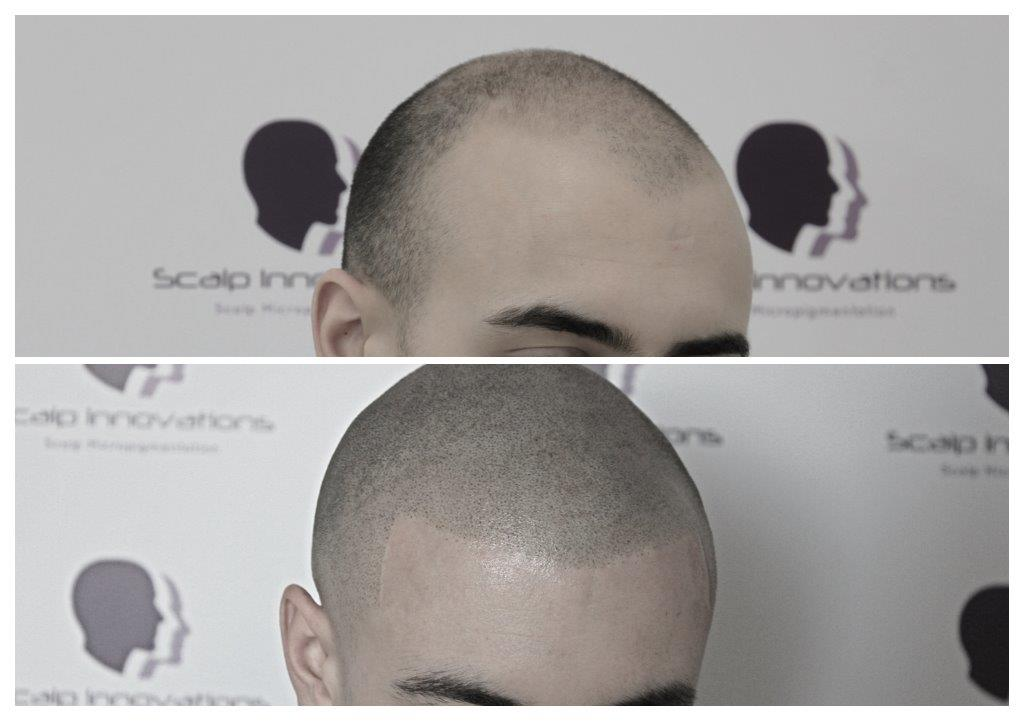 Shaved-8 Gallery -The Scalp  & Micro-pigmentation Experts Swindon