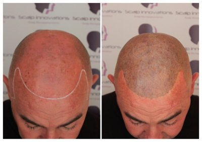 Stevie-smp1-400x282 Gallery -The Scalp  & Micro-pigmentation Experts Swindon
