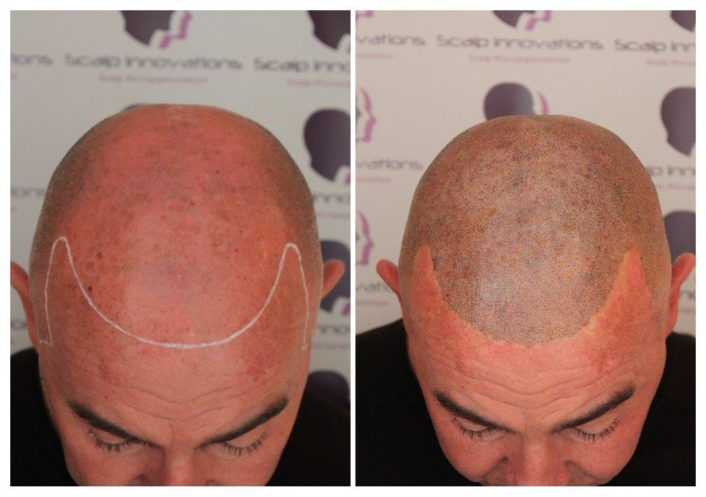 Stevie-smp1 Gallery -The Scalp  & Micro-pigmentation Experts Swindon