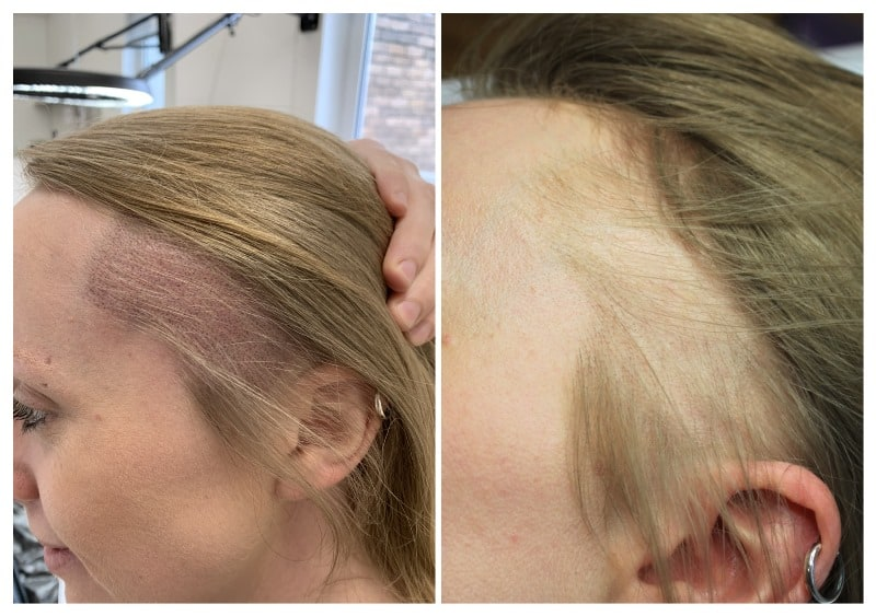Streched-alopecia-1 Gallery -The Scalp  & Micro-pigmentation Experts Swindon
