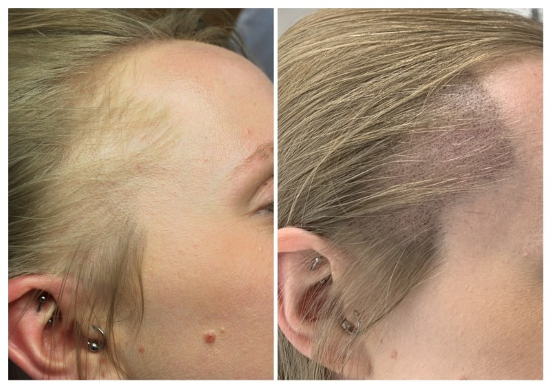 Streched-alopecia Gallery -The Scalp  & Micro-pigmentation Experts Swindon