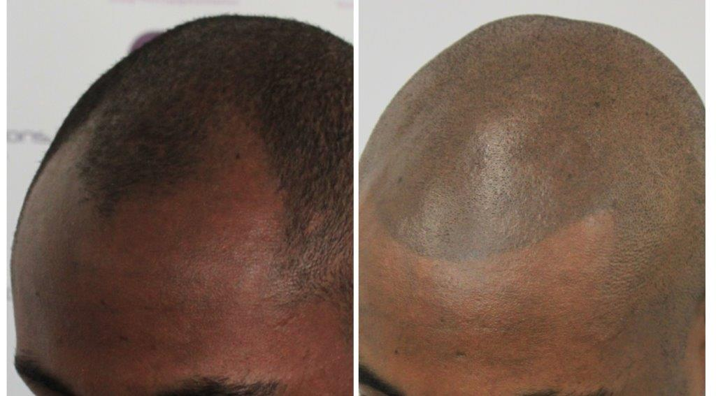 Subtle-new-hairline-2 Gallery -The Scalp  & Micro-pigmentation Experts Swindon