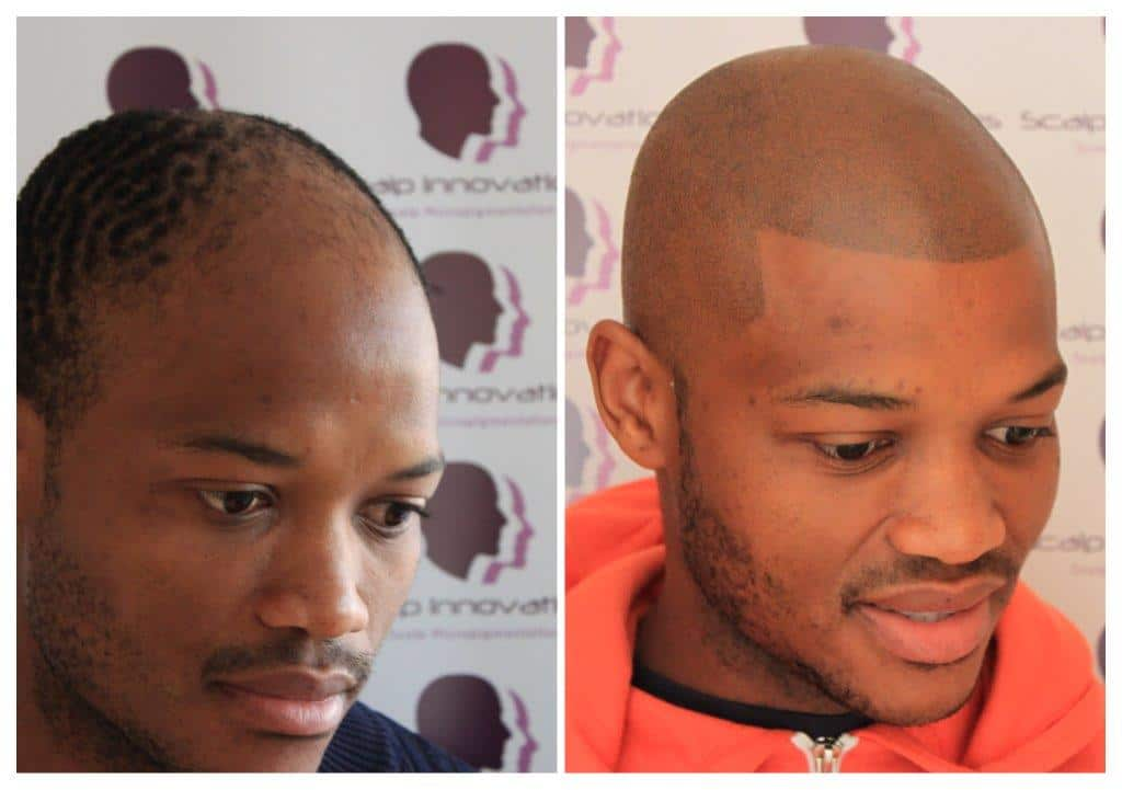 Tshepo-smp-2 Gallery -The Scalp  & Micro-pigmentation Experts Swindon