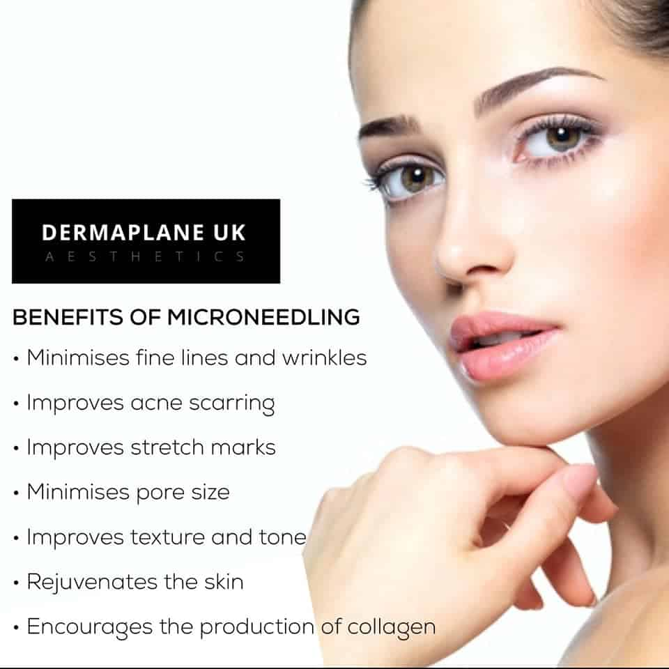 benefits-of-microneedling Micro Needling -The Scalp  & Micro-pigmentation Experts Swindon