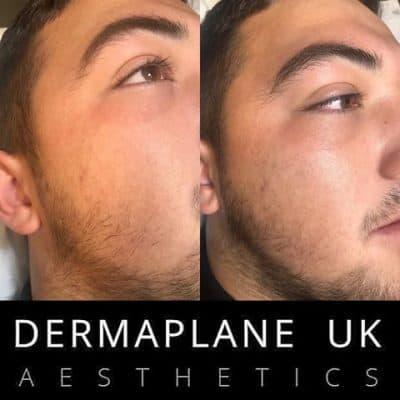 dermaplane-male-400x400 Dermaplane Facial -The Scalp  & Micro-pigmentation Experts Swindon