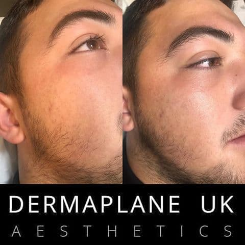 dermaplane-male Dermaplane Facial -The Scalp  & Micro-pigmentation Experts Swindon