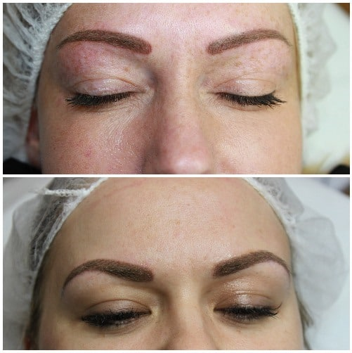 eyebrows Gallery for Semi-Permanent Make-up -The Scalp  & Micro-pigmentation Experts Swindon