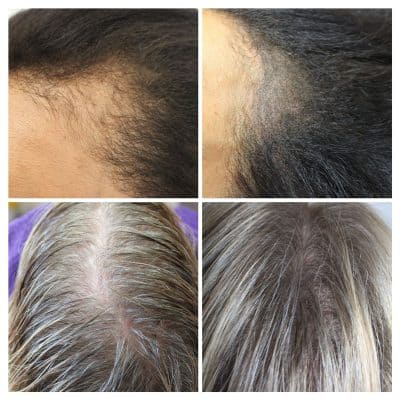 female-hair-density-April-400x400 Gallery -The Scalp  & Micro-pigmentation Experts Swindon