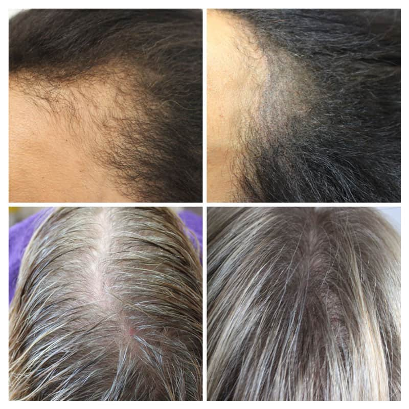 female-hair-density-April Gallery -The Scalp  & Micro-pigmentation Experts Swindon