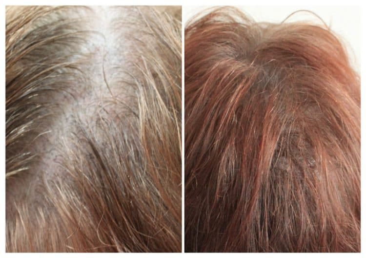 female-hair-density-may-18-2-e1533734808655 Gallery -The Scalp  & Micro-pigmentation Experts Swindon