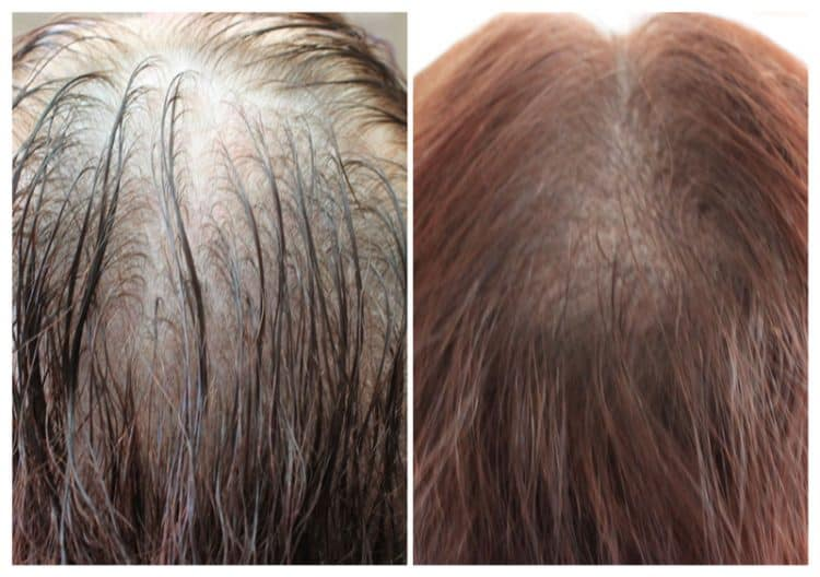 female-hair-density-may18-1-e1533734824991 Gallery -The Scalp  & Micro-pigmentation Experts Swindon