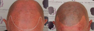 micropigmentation-400x133 Gallery -The Scalp  & Micro-pigmentation Experts Swindon