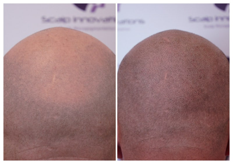 micropigmentation-April2019 Gallery -The Scalp  & Micro-pigmentation Experts Swindon