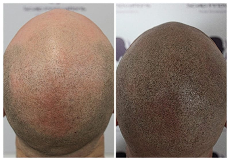 micropigmentation-Marc6 Gallery -The Scalp  & Micro-pigmentation Experts Swindon