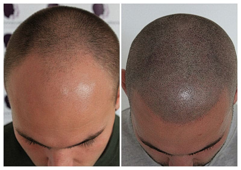 micropigmentation-Mike2019 Gallery -The Scalp  & Micro-pigmentation Experts Swindon
