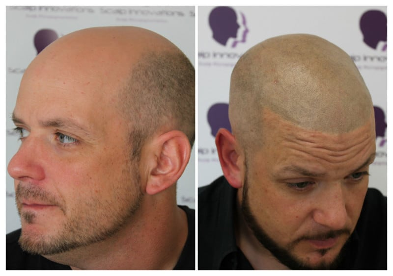 micropigmentation-Scalp2019 Gallery -The Scalp  & Micro-pigmentation Experts Swindon