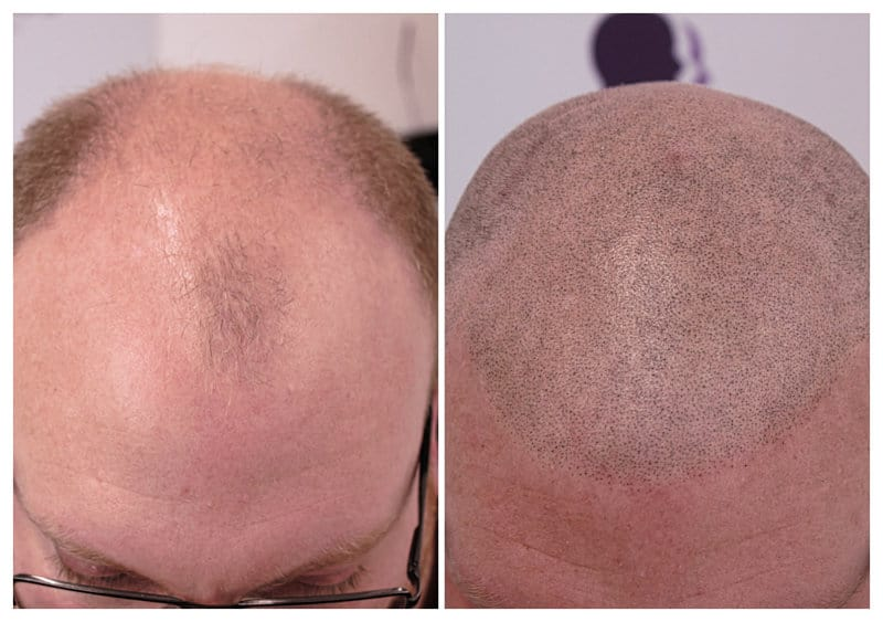 micropigmentation-scalpapril2019-d Gallery -The Scalp  & Micro-pigmentation Experts Swindon
