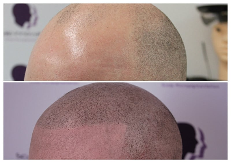 micropigmentation-scalpapril2019-d1 Gallery -The Scalp  & Micro-pigmentation Experts Swindon