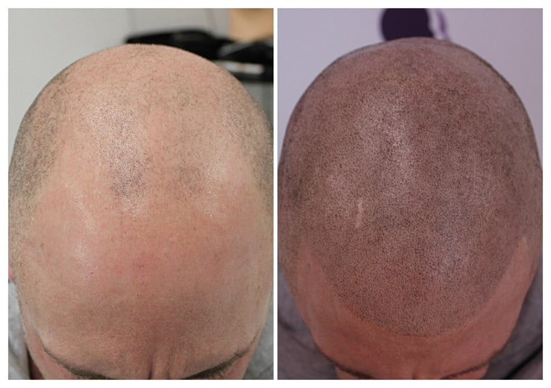 micropigmentation-scalpapril2019-dav Gallery -The Scalp  & Micro-pigmentation Experts Swindon