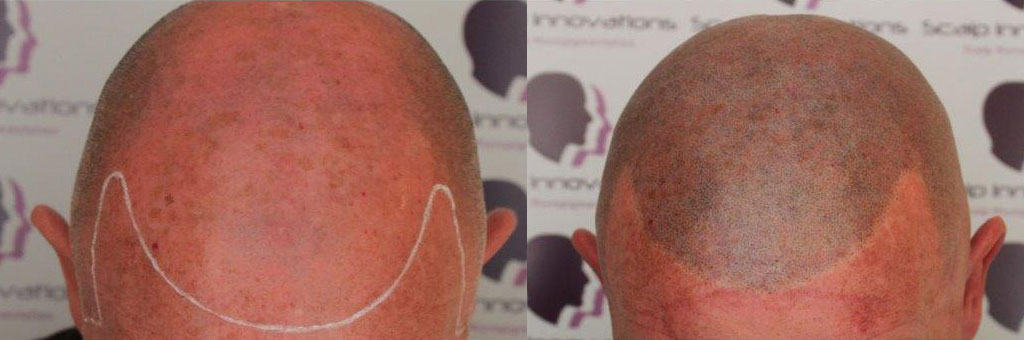 micropigmentation Home -The Scalp  & Micro-pigmentation Experts Swindon
