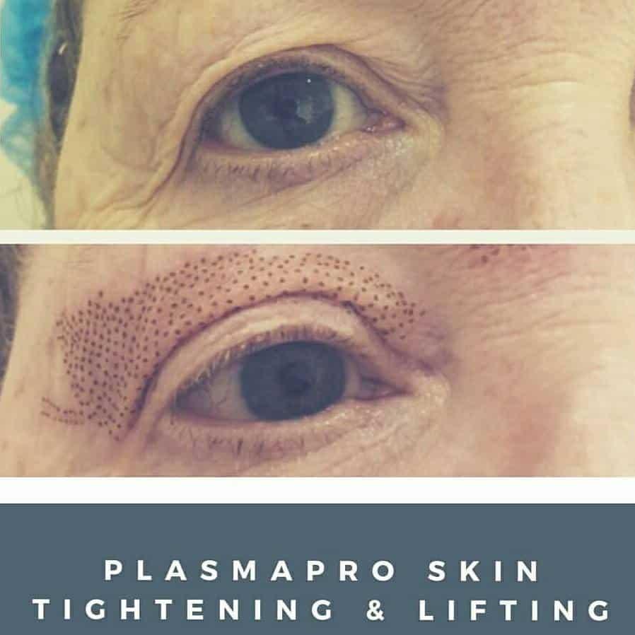 plasmapro-skin-tightening Fibroblast / Plasma Therapy -The Scalp  & Micro-pigmentation Experts Swindon