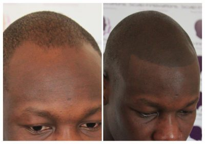 scalp-innovations-hair-loss-6-400x282 Gallery -The Scalp  & Micro-pigmentation Experts Swindon