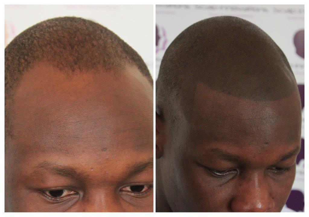 scalp-innovations-hair-loss-6 Gallery -The Scalp  & Micro-pigmentation Experts Swindon