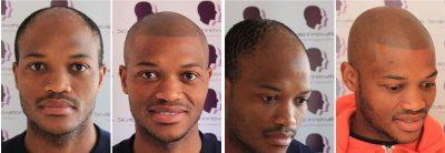 scalp-innovations-hair-loss-8-400x138 Gallery -The Scalp  & Micro-pigmentation Experts Swindon