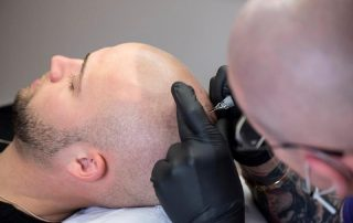 scalp-micropigmentation-06191-320x202 Contact Us -The Scalp  & Micro-pigmentation Experts Swindon
