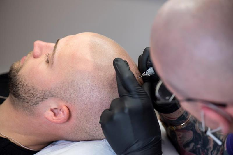scalp-micropigmentation-06191 Gallery -The Scalp  & Micro-pigmentation Experts Swindon