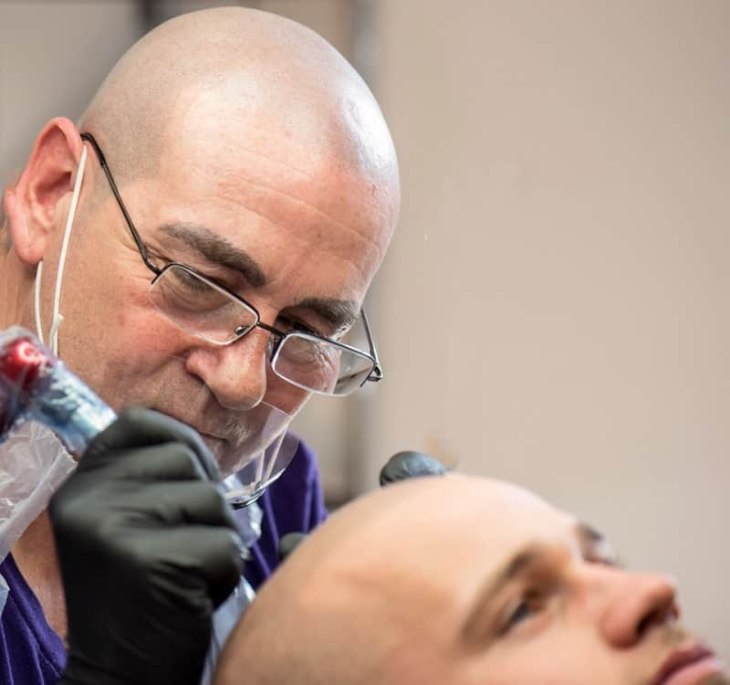 scalp-micropigmentation-06192 Gallery -The Scalp  & Micro-pigmentation Experts Swindon